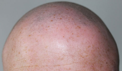 Народные средства от вшей на длинных волосах