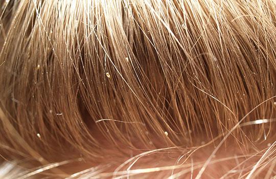 Головная вошь на волосах