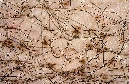 Ловковые вши на волосах
